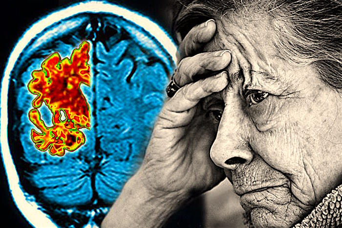 Read more about the article Sleep depravation and Alzheimer disease